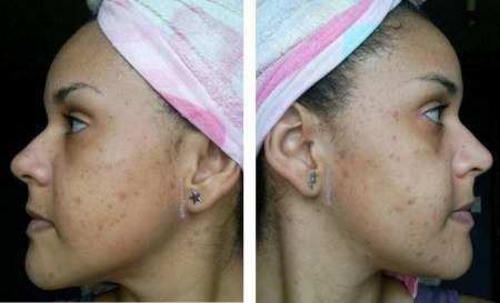 acne-manchas-cicatrices-piel-grasa-espinillas-barros